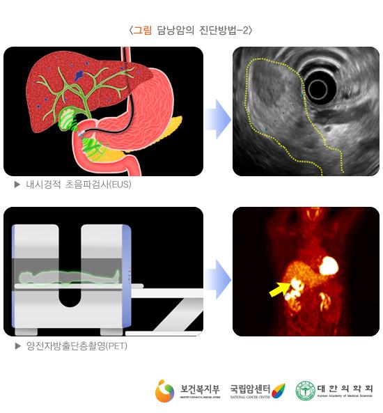 담낭암의진단방법-2