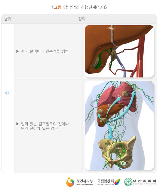 담낭암의진행단계(4기)