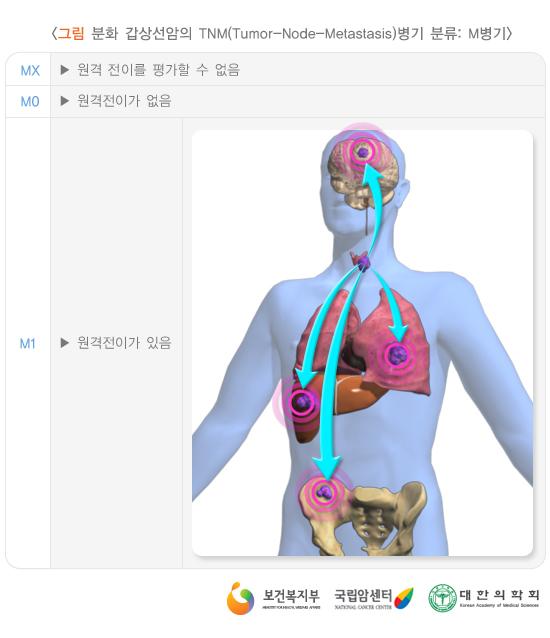 분화갑상선암의