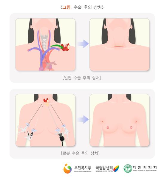 갑상선암수술후의상처