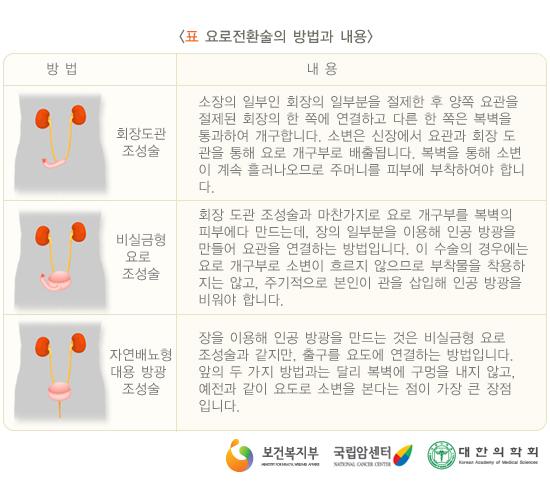 표.요로전환술의방법과내용
