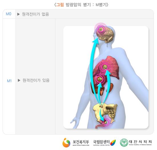 방광암의병기(1997년TNM분류):M병기