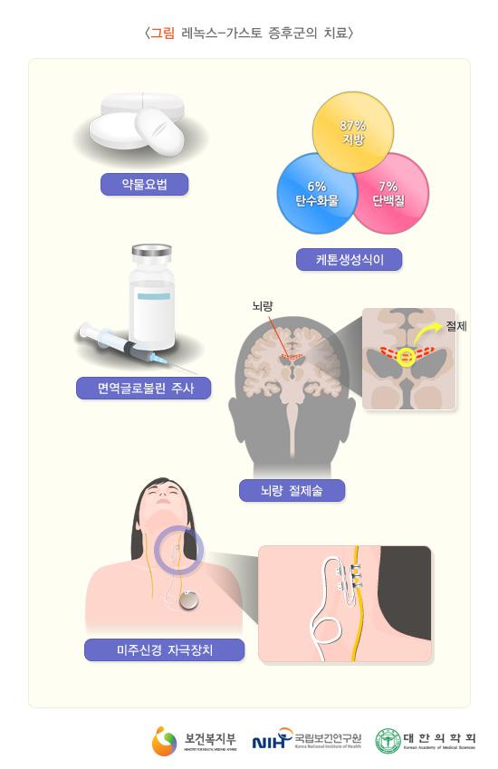 레녹스-가스토증후군