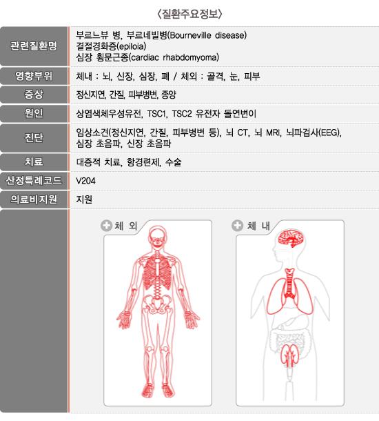 결절성경화증_질환주요정보